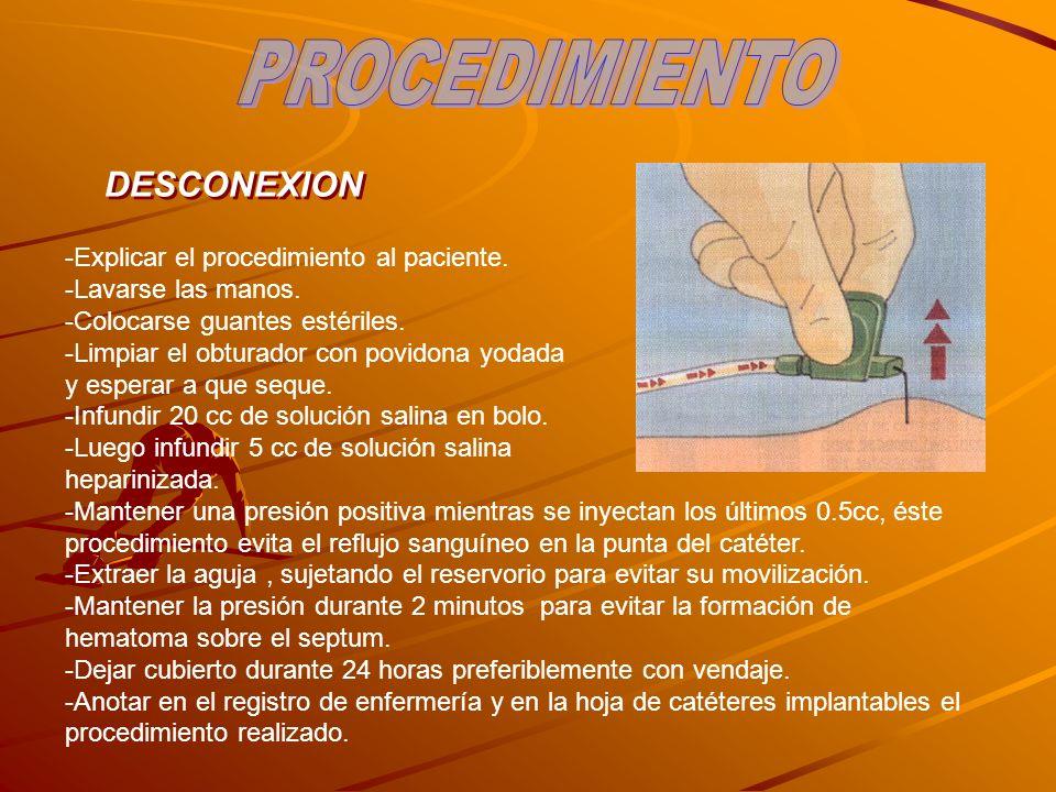 PROCEDIMIENTO DESCONEXION Explicar el procedimiento al paciente.