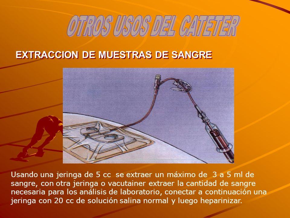 OTROS USOS DEL CATETER EXTRACCION DE MUESTRAS DE SANGRE