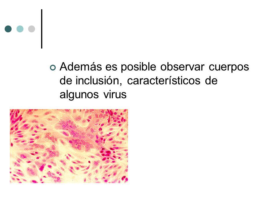 Además es posible observar cuerpos de inclusión, característicos de algunos virus