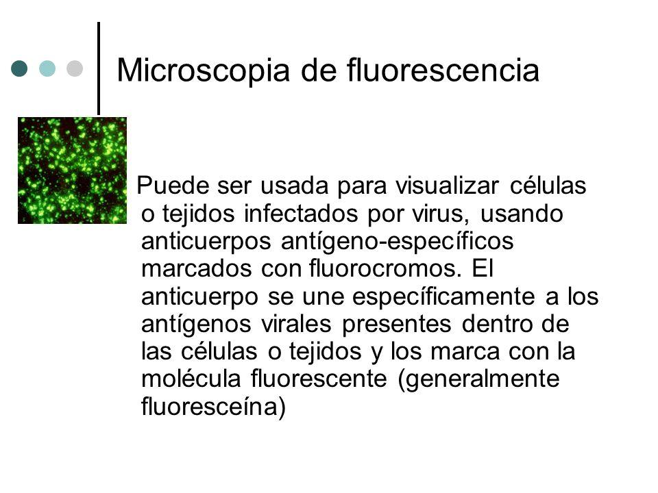 Microscopia de fluorescencia