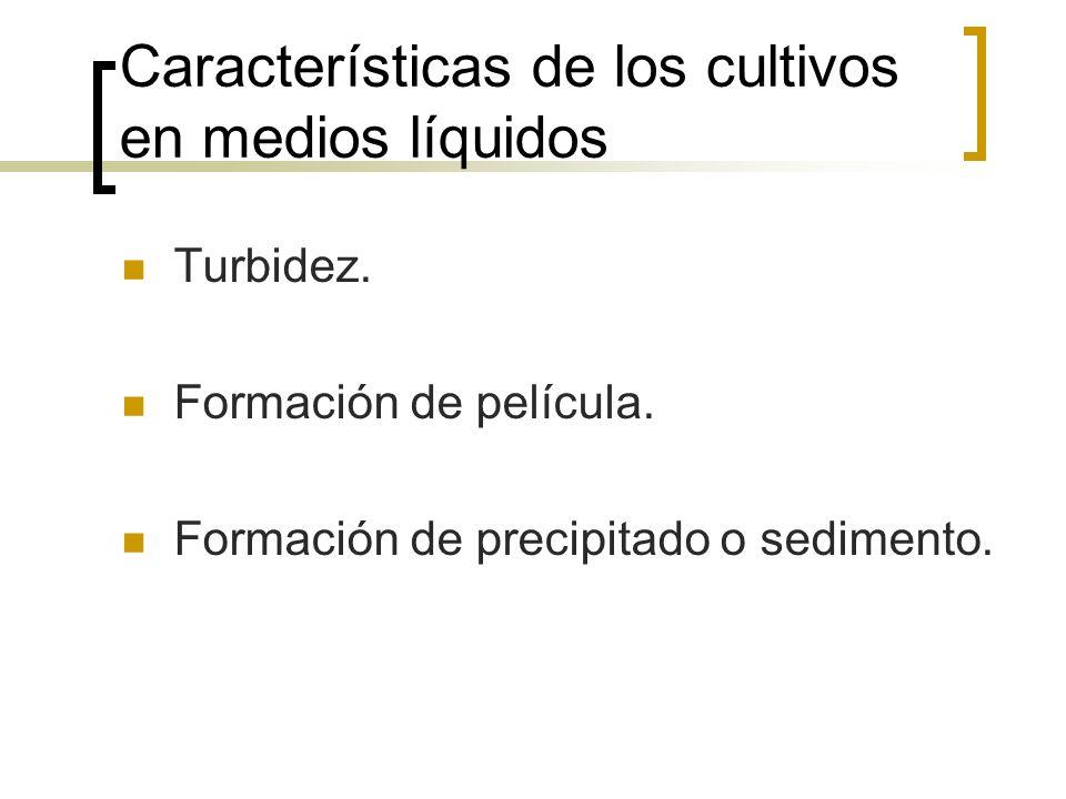 Características de los cultivos en medios líquidos