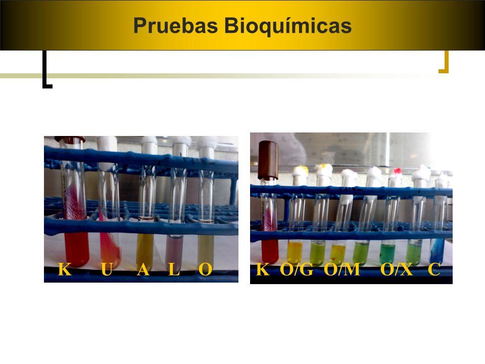 Pruebas Bioquímicas K U A L O K O/G O/M O/X C Burkholderia cepacia