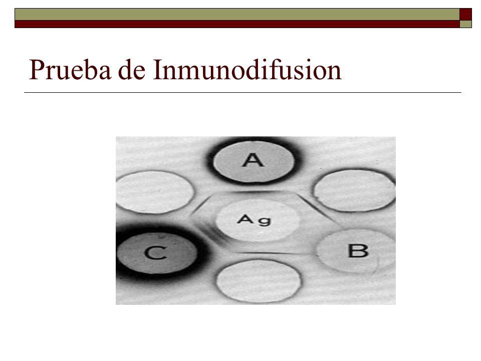 Prueba de Inmunodifusion
