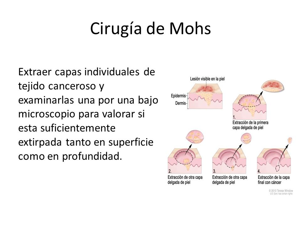 Cirugía de Mohs