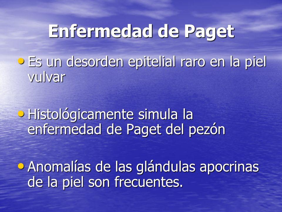 Enfermedad de Paget Es un desorden epitelial raro en la piel vulvar