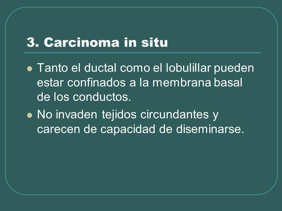 3. Carcinoma in situ Tanto el ductal como el lobulillar pueden estar confinados a la membrana basal de los conductos.