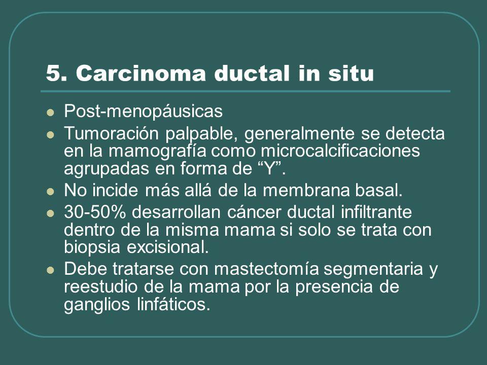 5. Carcinoma ductal in situ