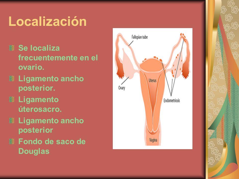 Localización Se localiza frecuentemente en el ovario.