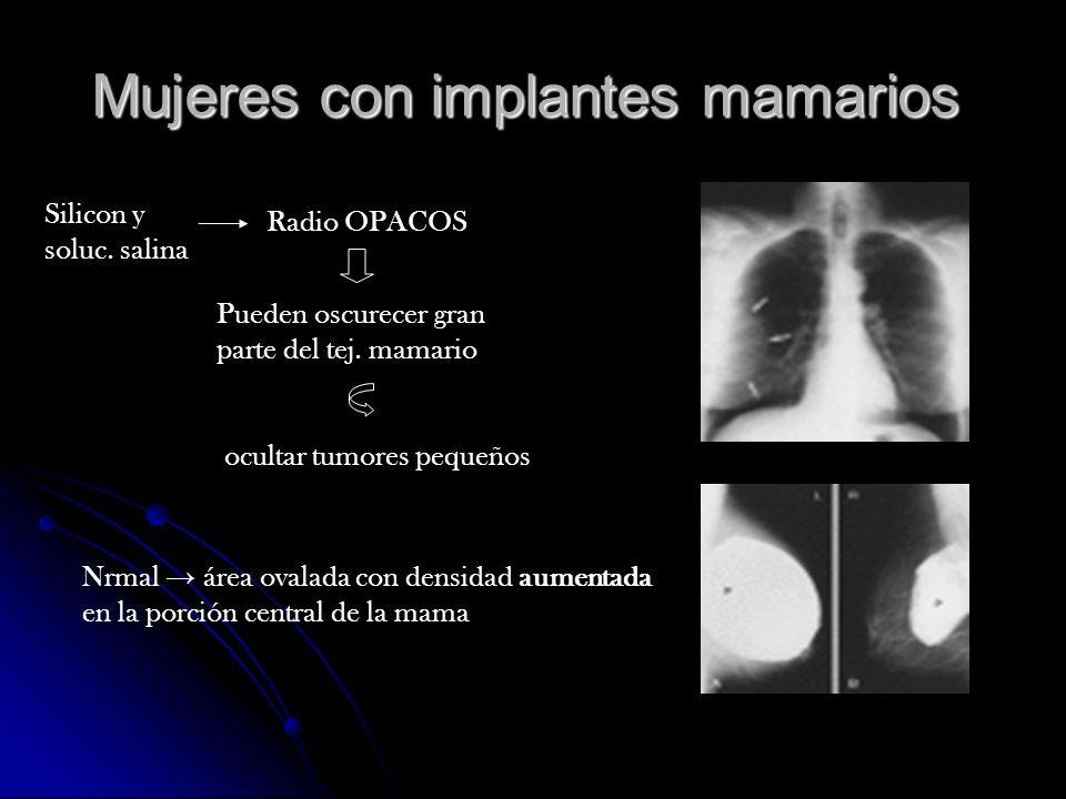 Mujeres con implantes mamarios