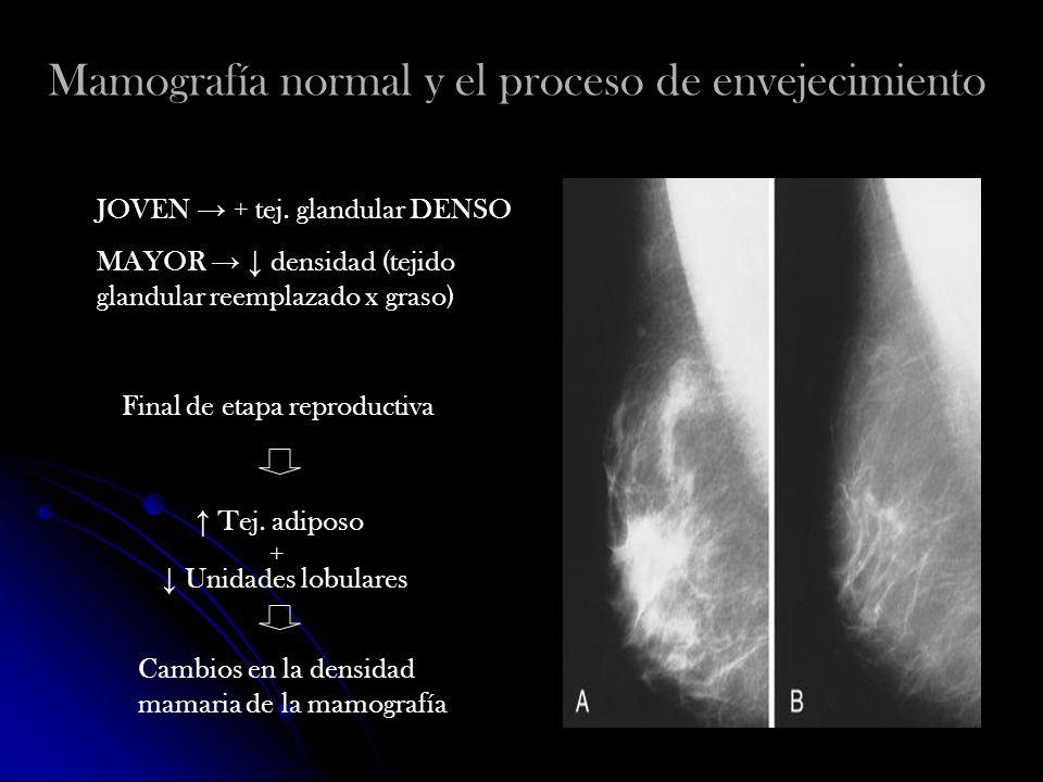 Mamografía normal y el proceso de envejecimiento