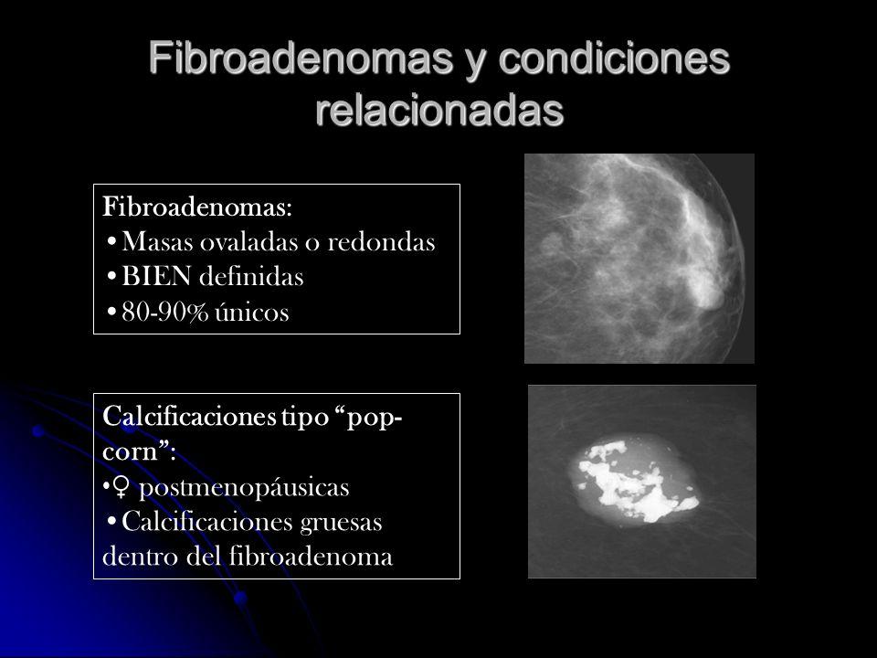 Fibroadenomas y condiciones relacionadas