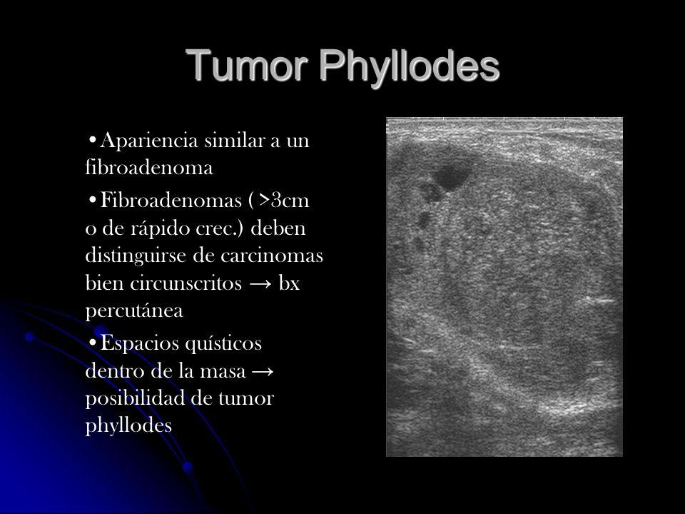 Tumor Phyllodes Apariencia similar a un fibroadenoma