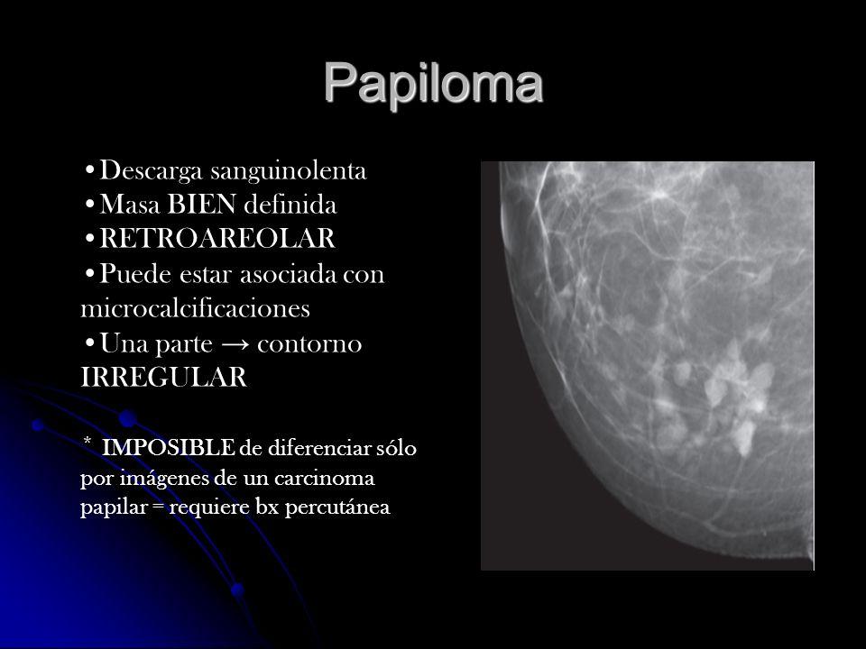 Papiloma Descarga sanguinolenta Masa BIEN definida RETROAREOLAR