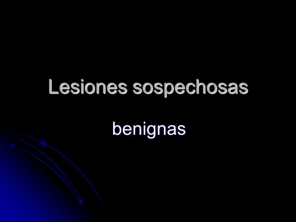 Lesiones sospechosas benignas