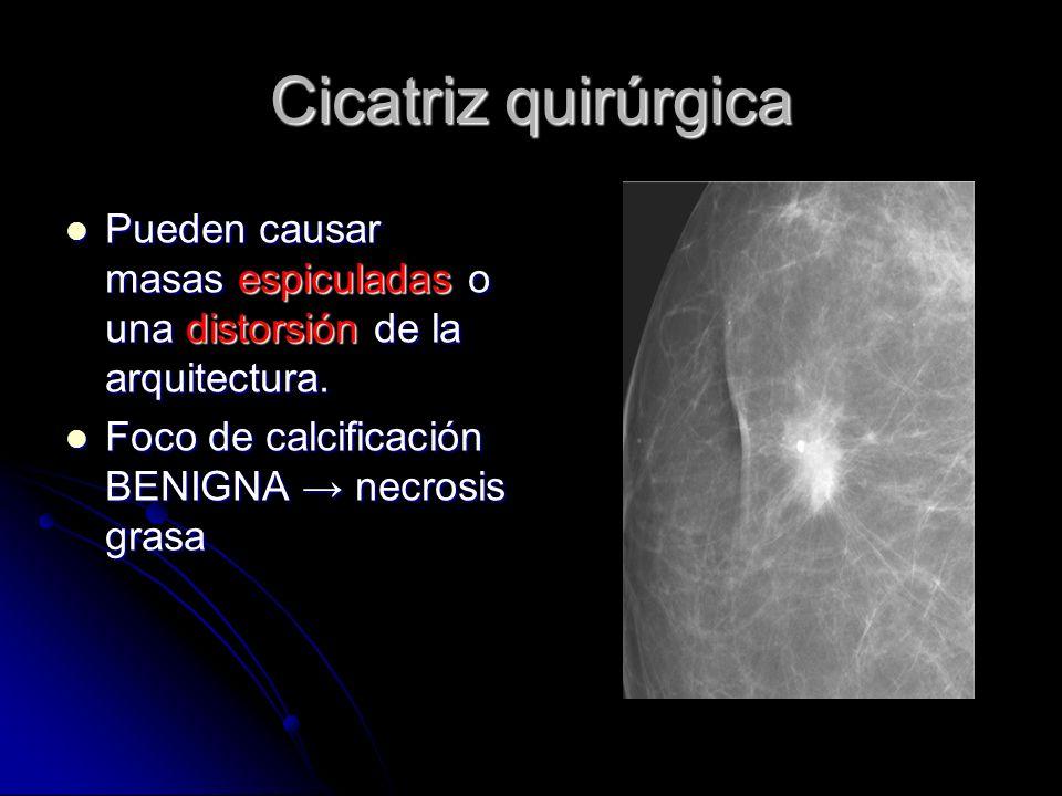 Cicatriz quirúrgicaPueden causar masas espiculadas o una distorsión de la arquitectura.