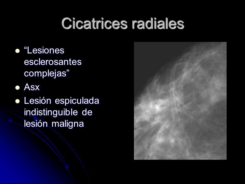 Cicatrices radiales Lesiones esclerosantes complejas Asx