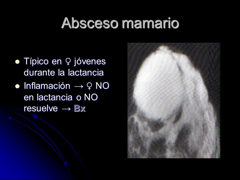Absceso mamario Típico en ♀ jóvenes durante la lactancia