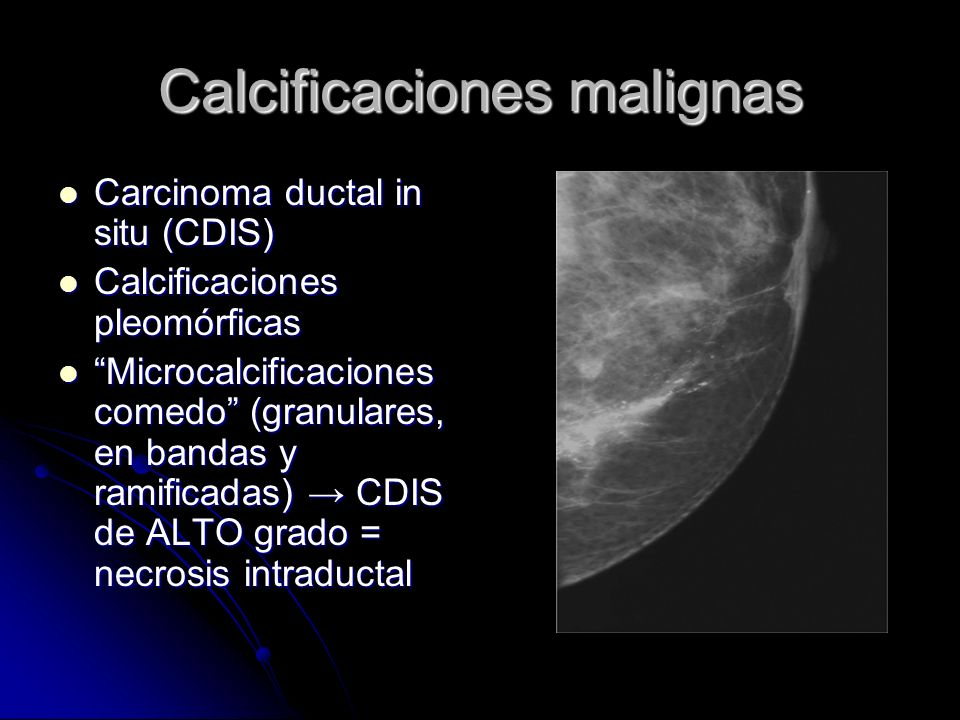Calcificaciones malignas
