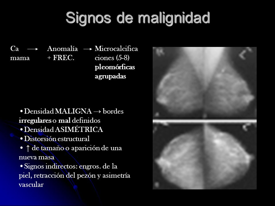Signos de malignidad Ca mama Anomalía + FREC.