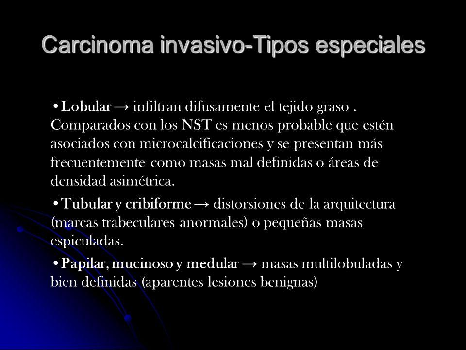 Carcinoma invasivo-Tipos especiales