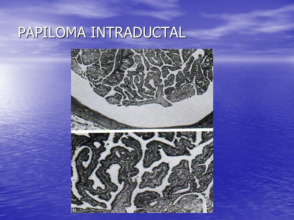 PAPILOMA INTRADUCTAL