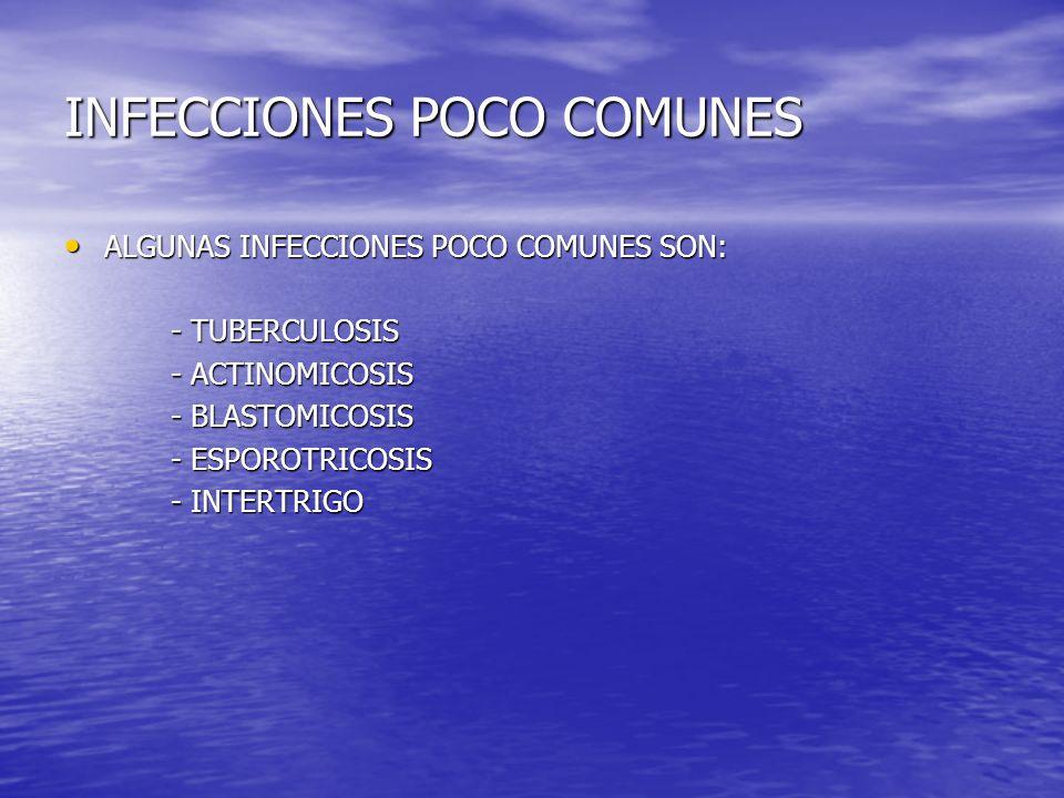 INFECCIONES POCO COMUNES