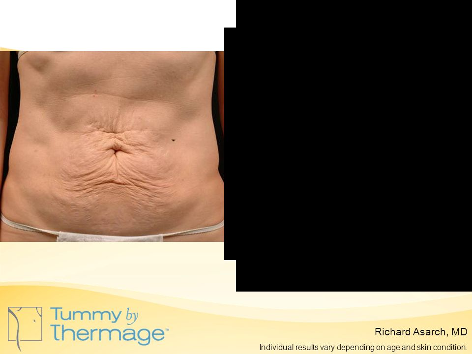 Before Thermage 6 Months Post Thermage Richard Asarch, MD