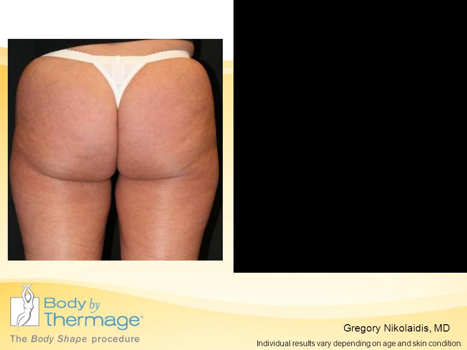 Before Thermage 3 Months Post Thermage Gregory Nikolaidis, MD