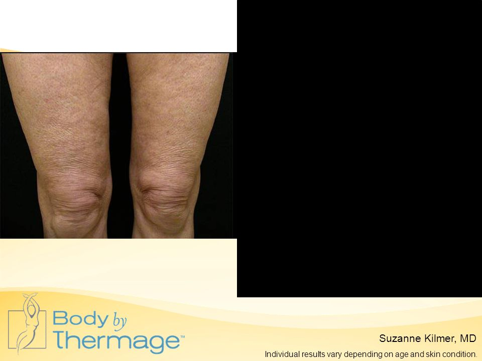 Before Thermage 12 Months Post Thermage Suzanne Kilmer, MD