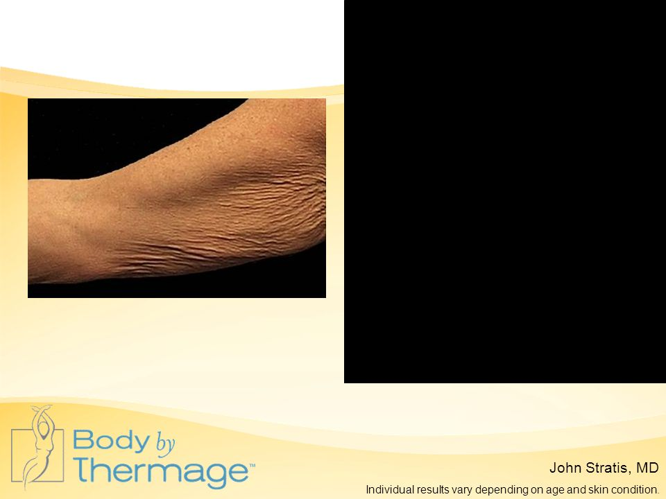 Before Thermage 3 Months Post Thermage John Stratis, MD