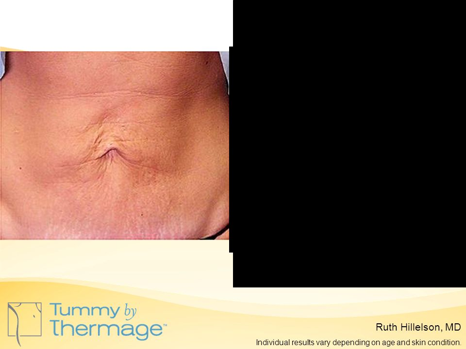 Before Thermage 5 Months Post Thermage Ruth Hillelson, MD