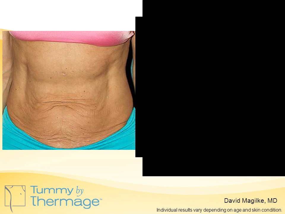 Before Thermage 3 Months Post Thermage David Magilke, MD