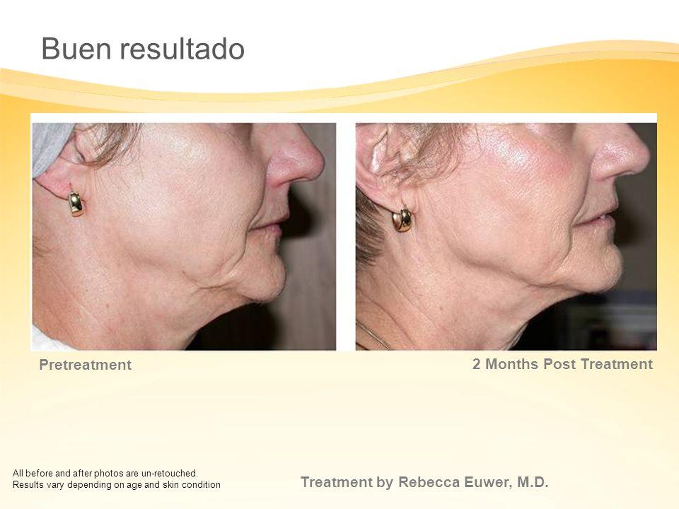 Buen resultado 5 Months Post Treatment Pretreatment
