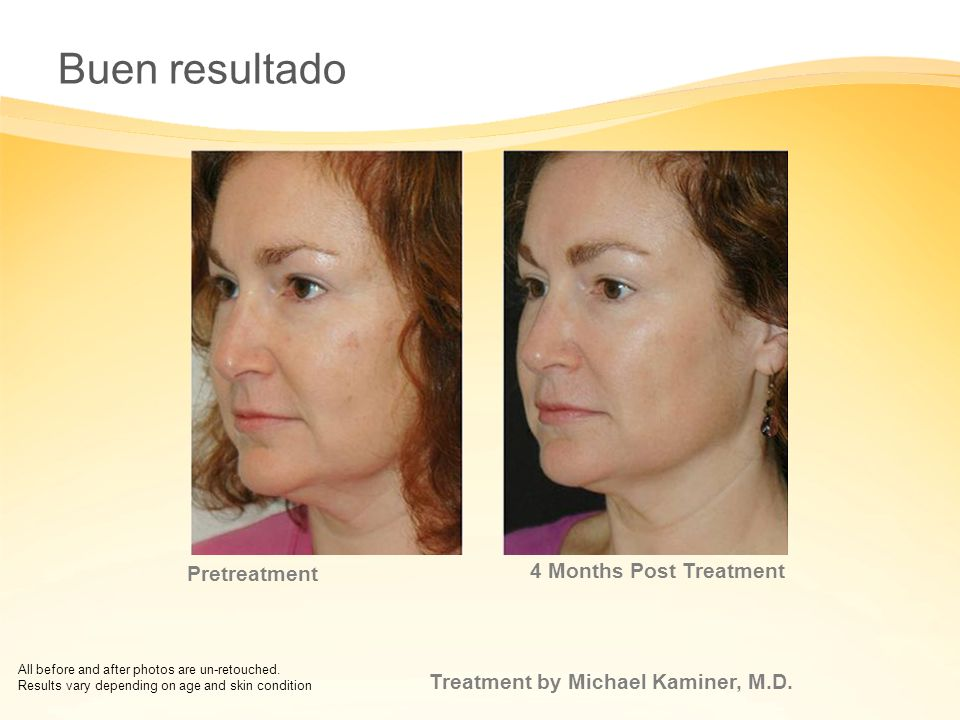 Buen resultado 5 Months Post Treatment Pretreatment
