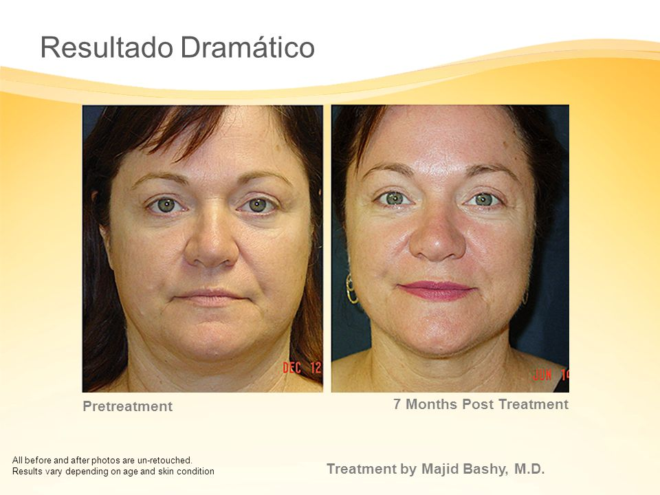 Resultado Dramático 7 Months Post Treatment Pretreatment