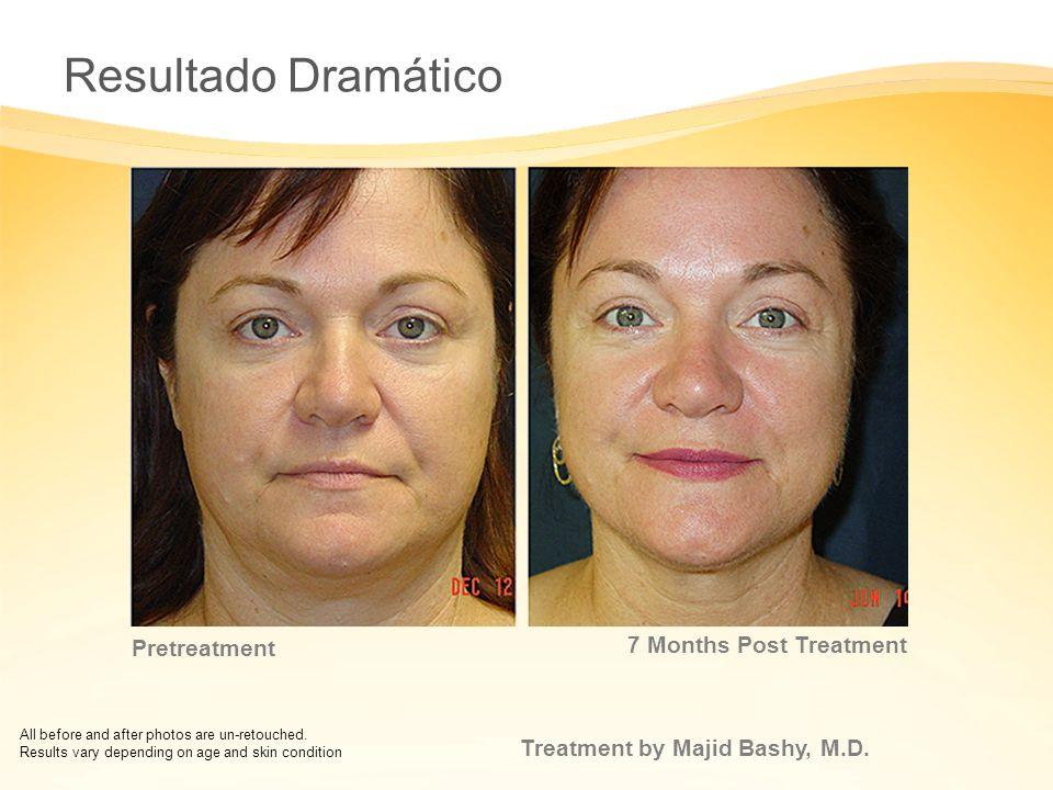 Resultado Dramático 7 Months Post Treatment Pretreatment