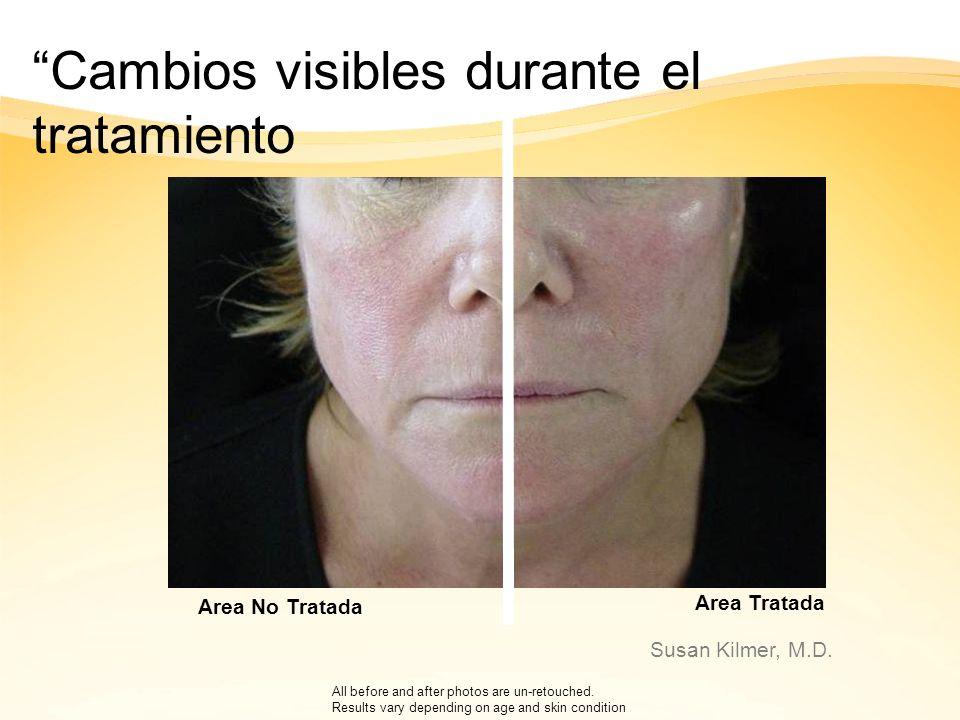 Cambios visibles durante el tratamiento