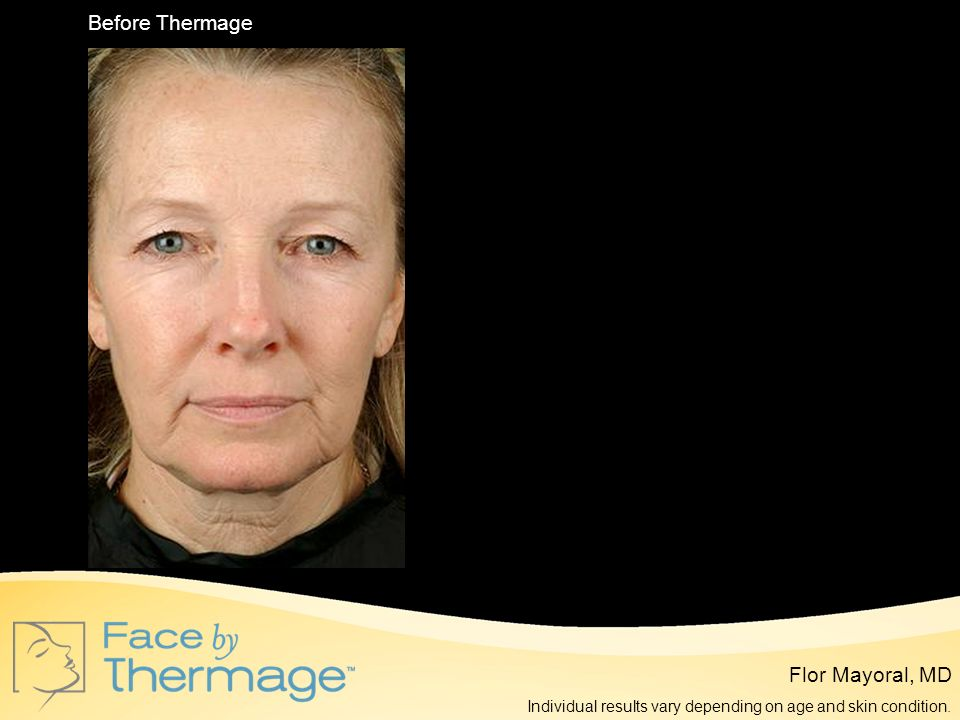 Before Thermage 6 Months Post Thermage Flor Mayoral, MD