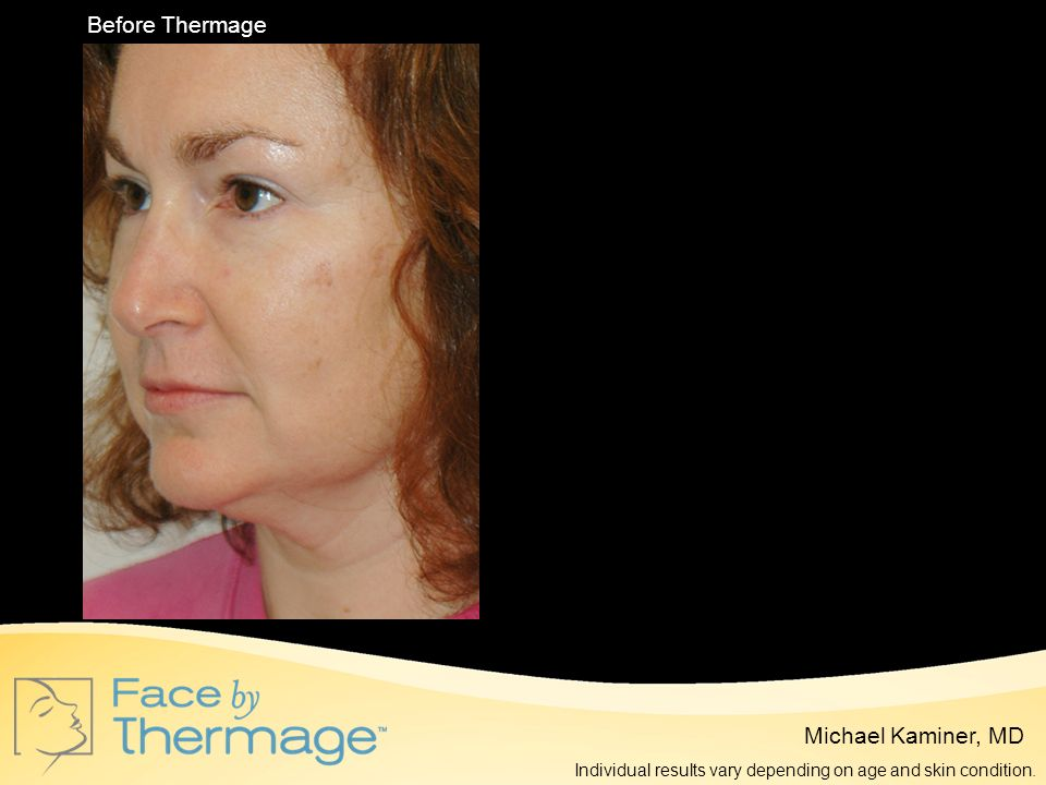 Before Thermage 4 Months Post Thermage Michael Kaminer, MD