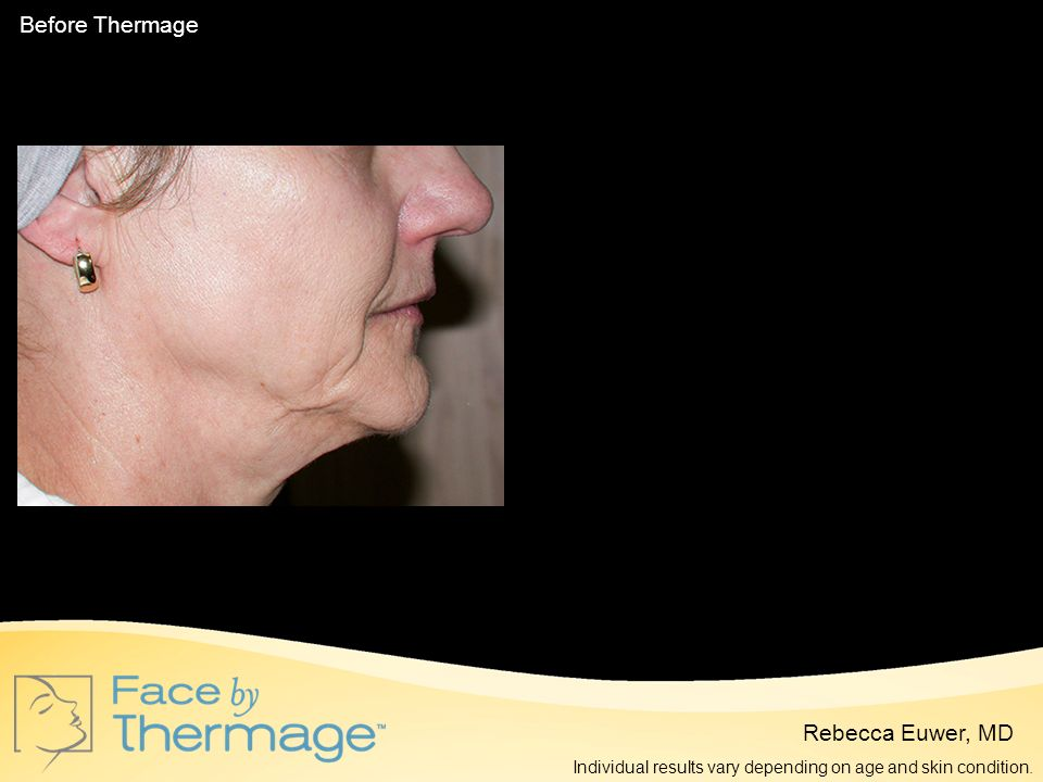 Before Thermage 2 Months Post Thermage Rebecca Euwer, MD