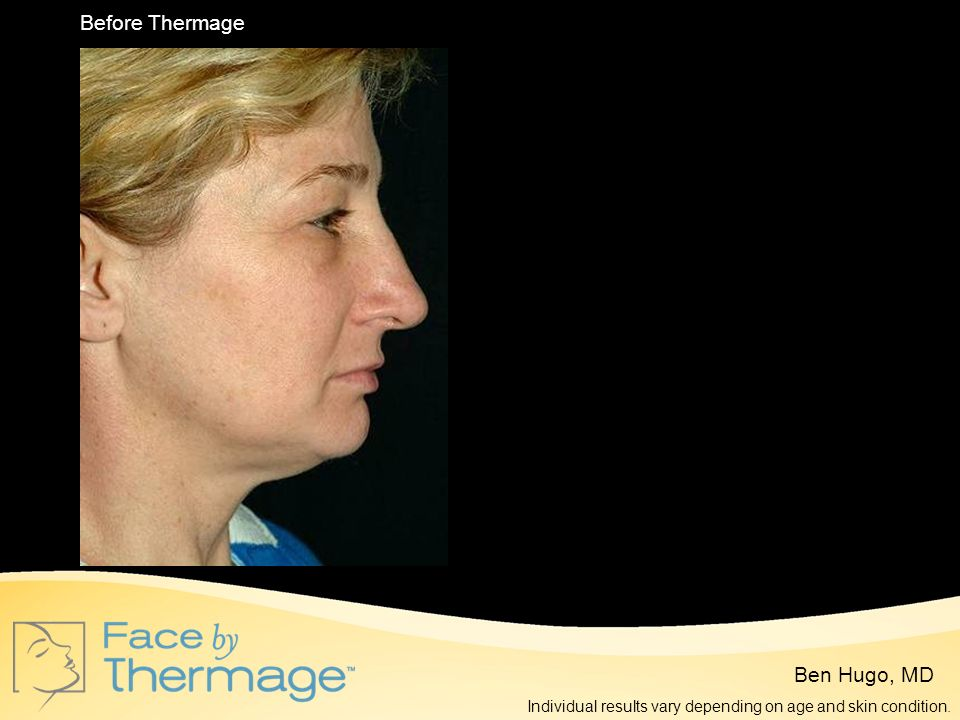 Before Thermage 7 Months Post Thermage Ben Hugo, MD