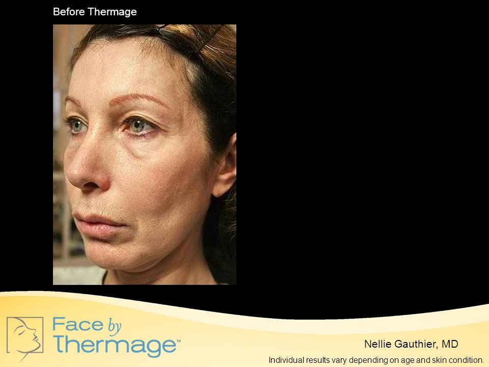 Before Thermage 10 Months Post Thermage Nellie Gauthier, MD
