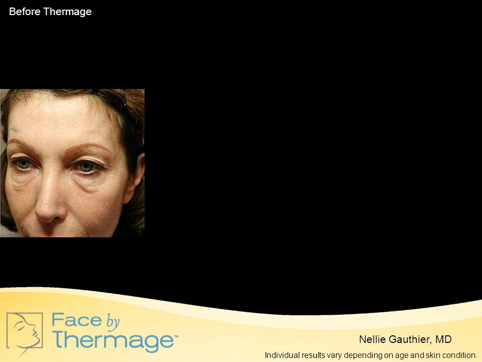 Before Thermage 3 Months Post Thermage 10 Months Post Thermage
