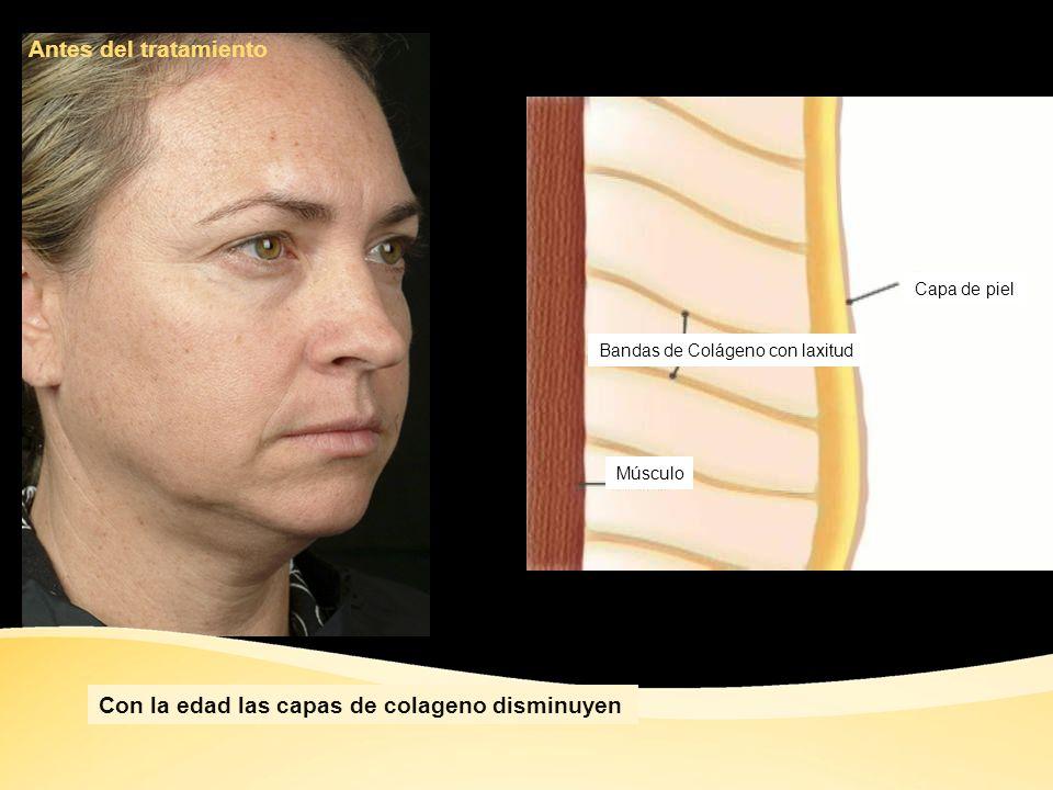Con la edad las capas de colageno disminuyen
