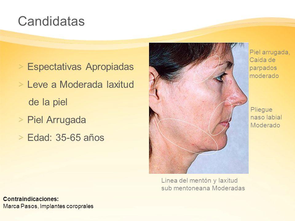 Candidatas Espectativas Apropiadas Leve a Moderada laxitud de la piel