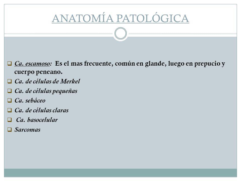 ANATOMÍA PATOLÓGICA Ca. escamoso: Es el mas frecuente, común en glande, luego en prepucio y cuerpo peneano.
