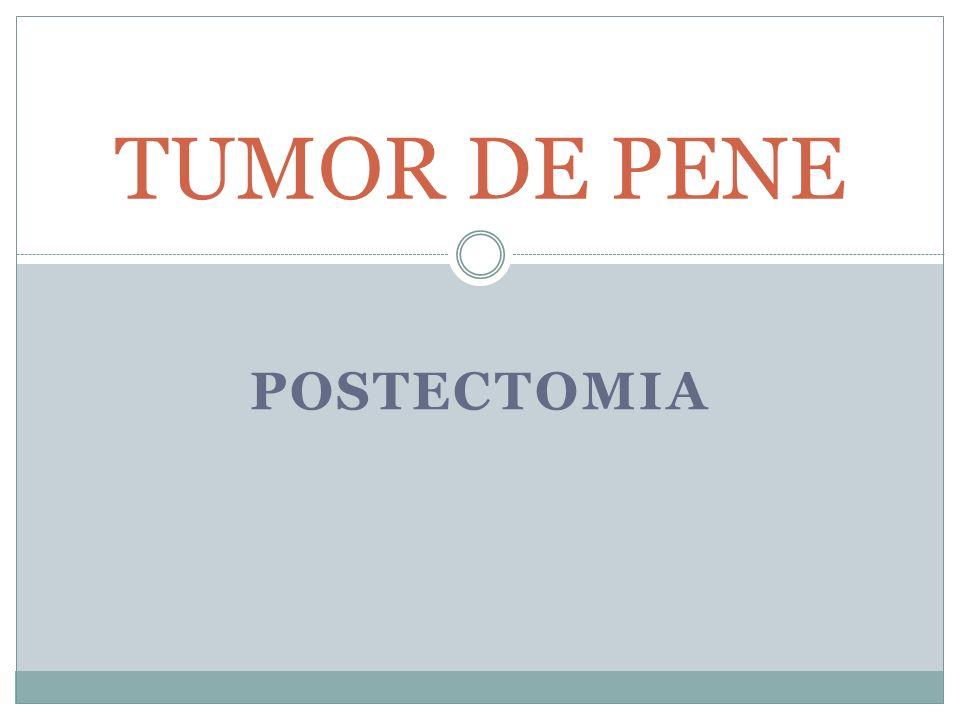 TUMOR DE PENE POSTECTOMIA