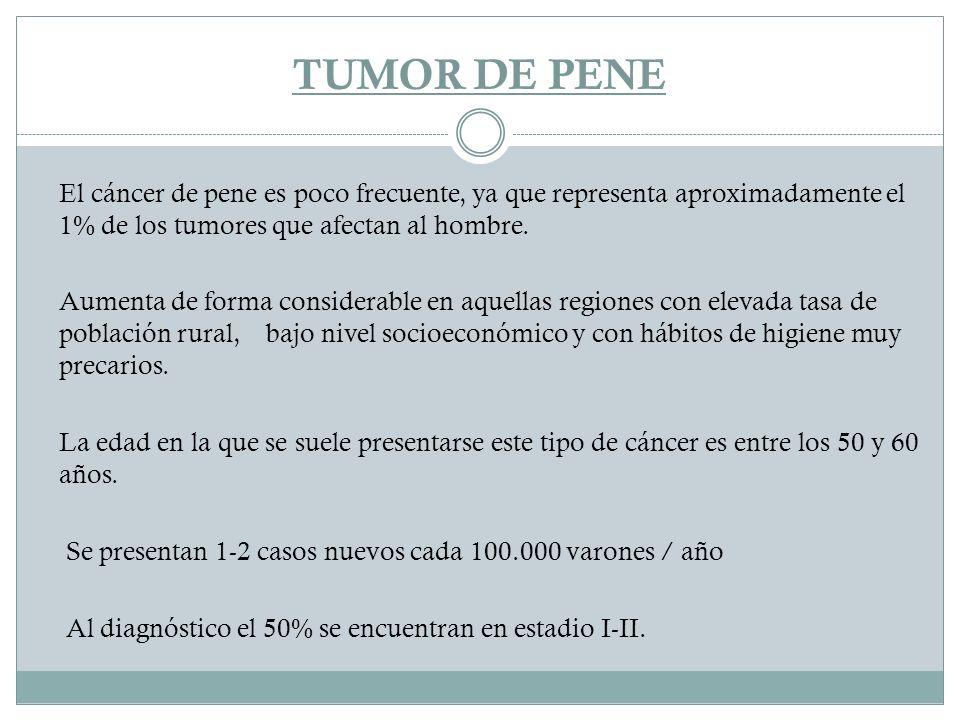 TUMOR DE PENE El cáncer de pene es poco frecuente, ya que representa aproximadamente el 1% de los tumores que afectan al hombre.