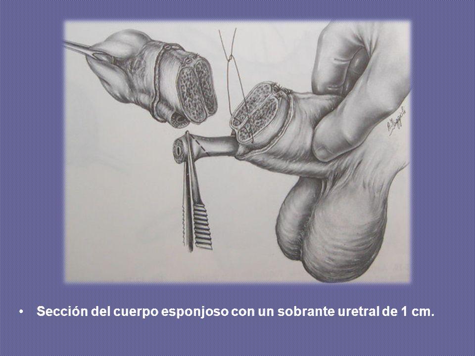 Sección del cuerpo esponjoso con un sobrante uretral de 1 cm.