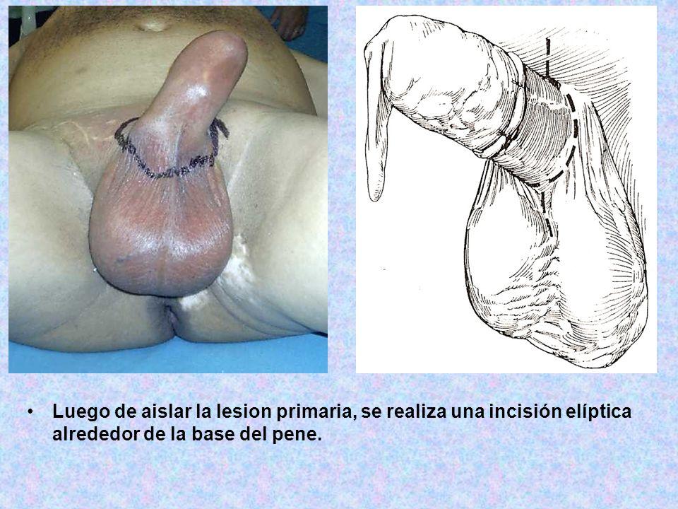 Luego de aislar la lesion primaria, se realiza una incisión elíptica alrededor de la base del pene.